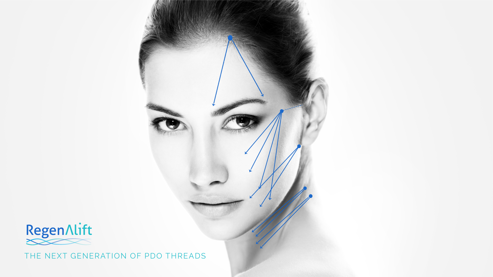 Lifting PDO Threads – visualisation of areas treated with RegenAlift Lifting PDO Threads